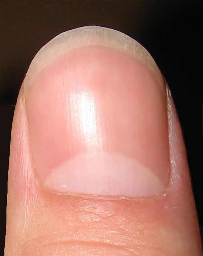 The Meaning Of The Half Moon Shape On Your Nails Has Finally Been ...