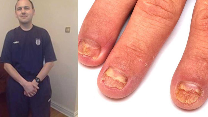 Fungal nail infection - NHS Choices
