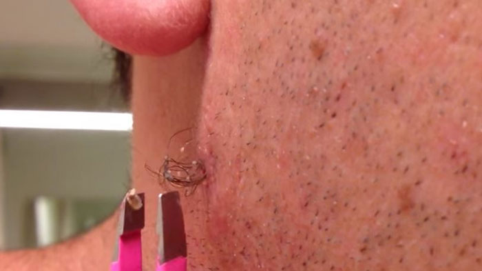 Longest Ingrown Hair This Guy Pulls Out The Longest