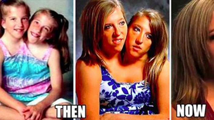 EVERYTHING ABOUT Conjoined Twins Abby And Brittany